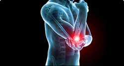 An image of a person holding their elbow where red indicates the pain area