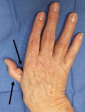 Contracture of the first web space & MP joint hyperextended