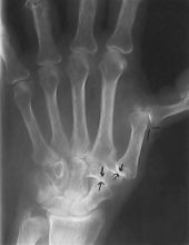 X-ray depicting swan neck deformity.