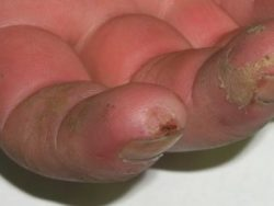 An image of fingers that are damaged and crusty