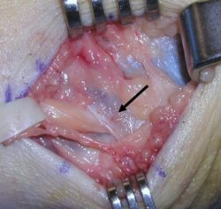 A ligament hoisted back with surgical forks and an arrow pointing to the ligament