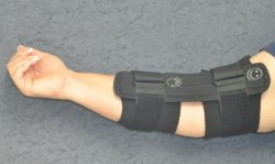 An arm stretched out where a brace is wrapped around the lower half of the forearm
