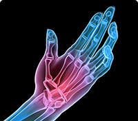 Hand of a skeleton where red indicates a specific pain area