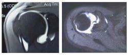 A MRI of a label tear