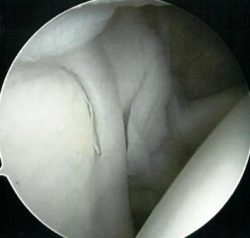 An image of a normal labrum