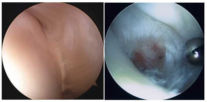 Normal vs Torn Rotator Cuff