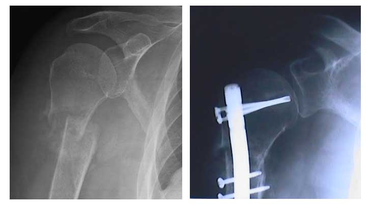 Two MRI's the first with broken shoulder and arm bones the second with a metal rod