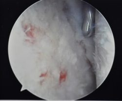 puctate bledeing due to microfracure treatment