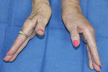 woman's hands with arthritis in wrist