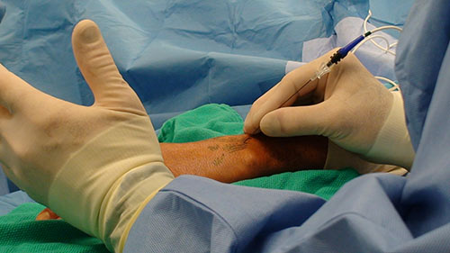 Percutaneus denervation