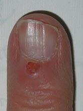 Popped-Cyst-at-Nail-Fold-2