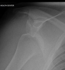 xray of dislocated shoulder