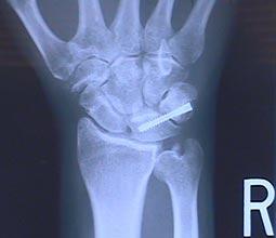 Lunatrotriquetral Instability x-ray